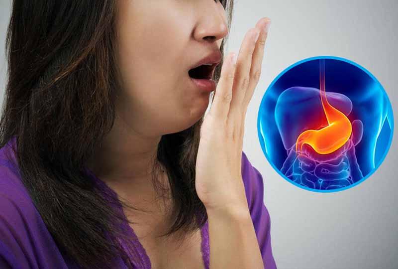 Hôi miệng hở van dạ dày là bệnh lý phổ biến hiện nay