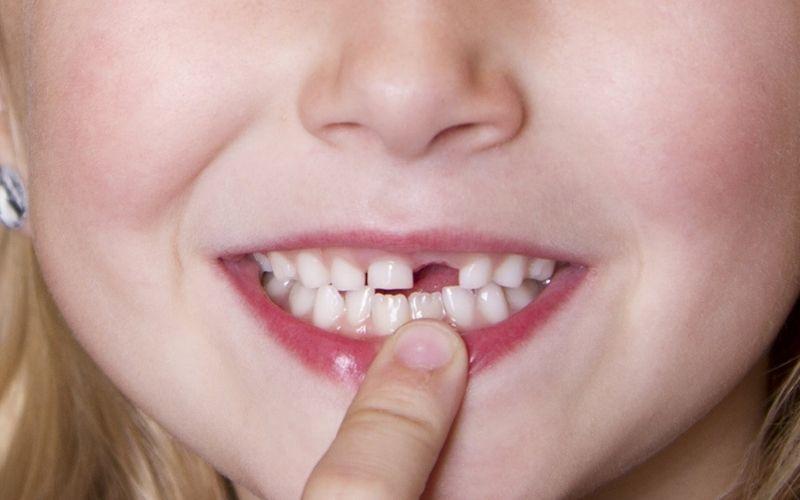 Không nên cưỡng ép nhổ răng sớm
