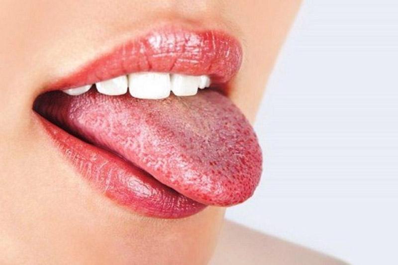 Bệnh nấm miệng do nấm candida gây nên