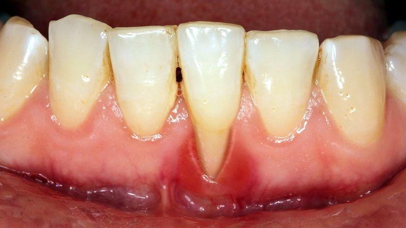 Tụt nướu là nguyên nhân gây ra hiện tượng răng bị ê buốt