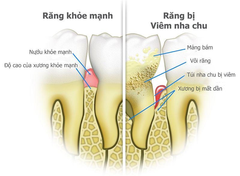 Viêm nha chu mãn tính hình thành do vi khuẩn ở mảng bám chân răng gây viêm nhiễm
