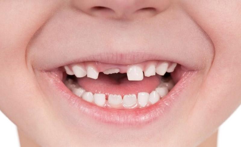 Răng vĩnh viễn có thể sẽ mọc lên bình thường đào thải chân răng sữa của bé.