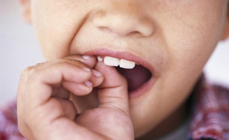 Khi nào nên thực hiện nhổ răng lung lay an toàn nhất?