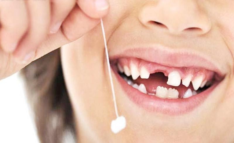 Nhổ răng sữa lung lay bằng chỉ là cách làm thông dụng được nhiều phụ huynh sử dụng.
