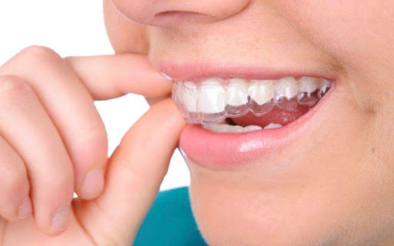 Hầu hết các lệch lạc răng đều có thể được điều chỉnh bằng niềng invisalign