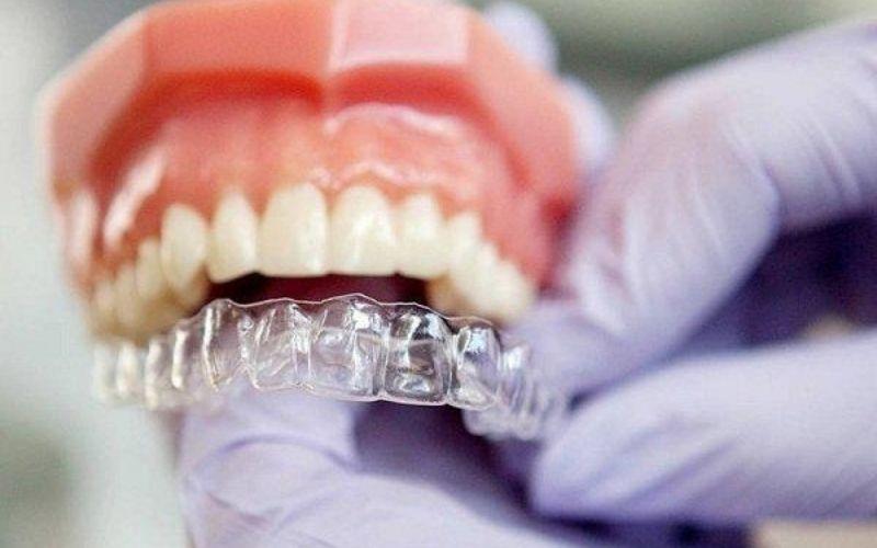 Thông số răng, hàm của bạn sẽ được chuyển tới công ty độc quyền tại Hoa Kỳ