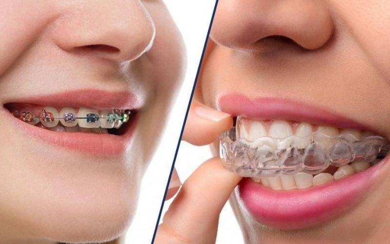 Niềng răng là cách dịch chuyển các vấn đề lệch lạc của hàm răng
