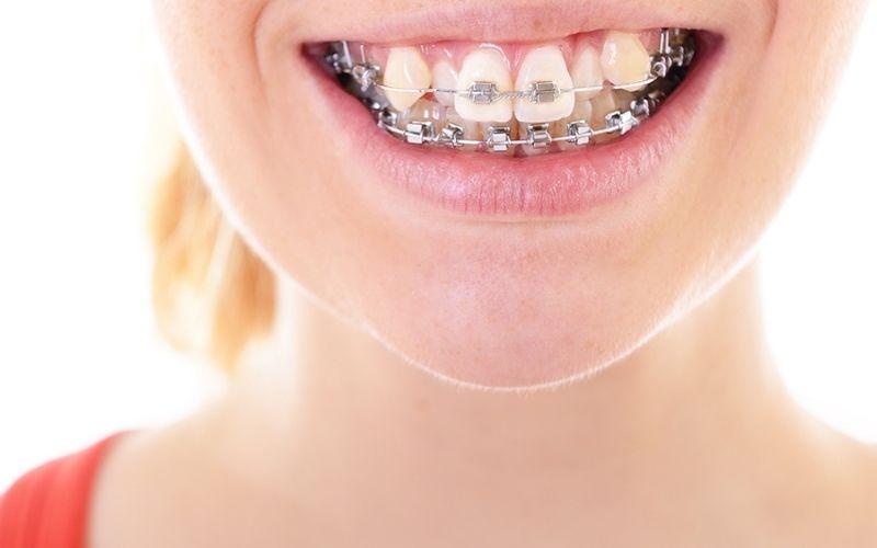 Không chỉ đẹp hơn, niềng răng còn giúp bạn ăn nhai dễ hơn