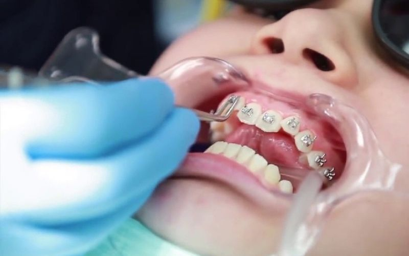 Quy trình niềng răng cơ bản đều tương tự nhau đối với mọi loại mắc cài