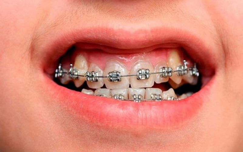 Niềng răng mắc cài có hiệu quả cao và được nhiều người lựa chọn