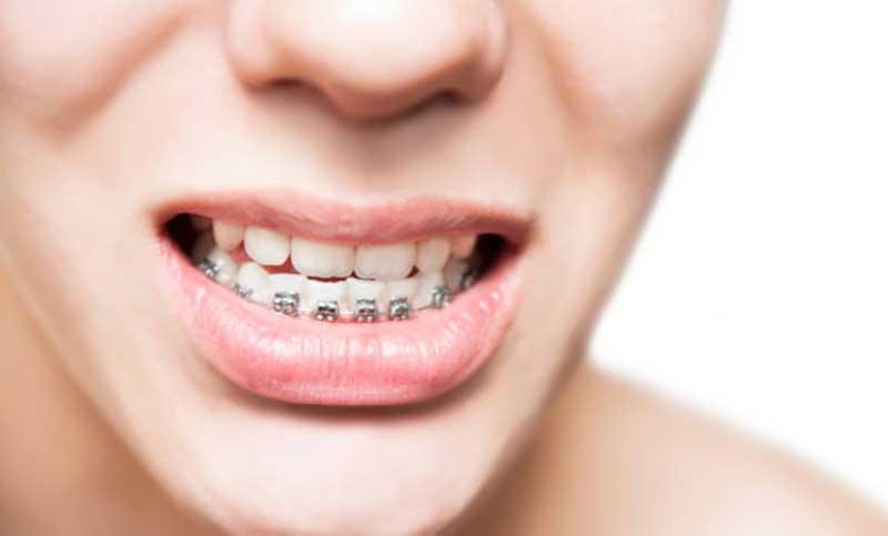 Tổng hợp các kinh nghiệm niềng răng móm hiệu quả nhất