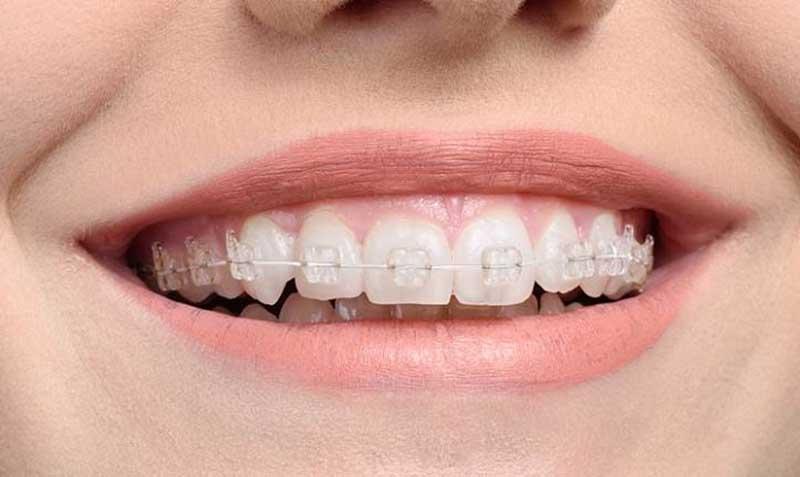 Niềng răng móm giúp người bệnh tự tin hơn trong giao tiếp