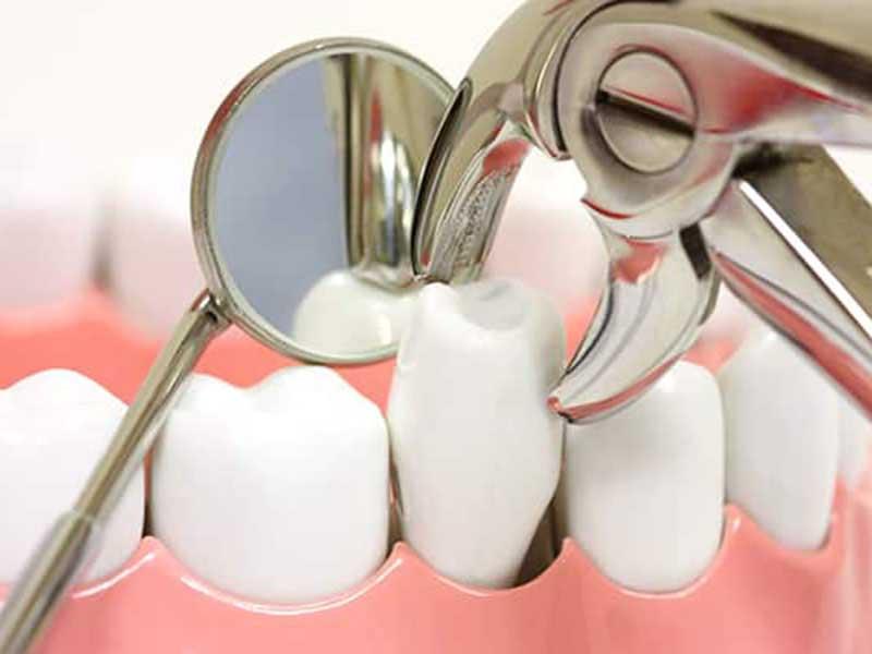 Phải nhổ răng hay không tuỳ vào tình trạng của từng người