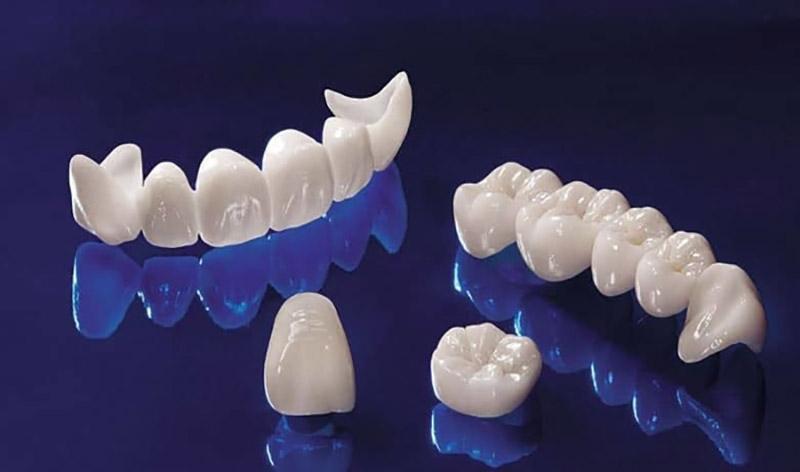 Bạn đọc nên tìm hiểu kỹ các cơ sở y tế nếu muốn thực hiện bọc răng sứ