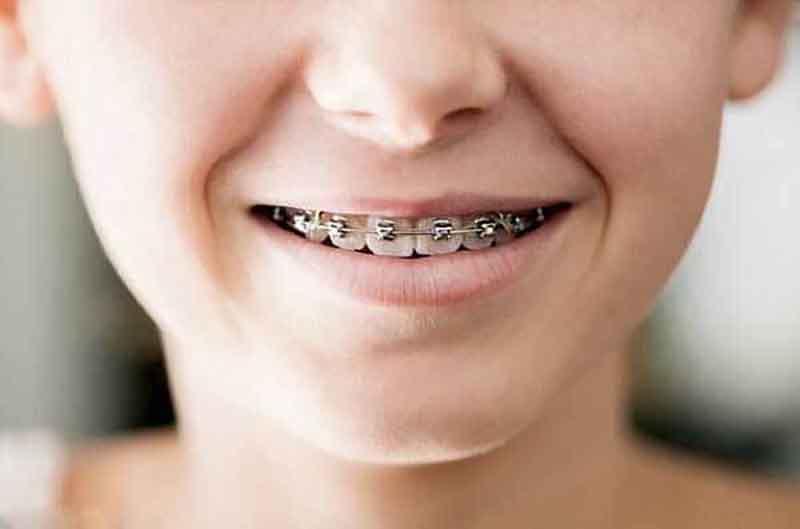 Trong nhiều trường hợp, nha sĩ sẽ khuyên phụ huynh cho trẻ niềng răng sớm