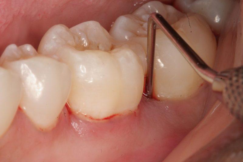 Sâu kẽ trong răng hàm