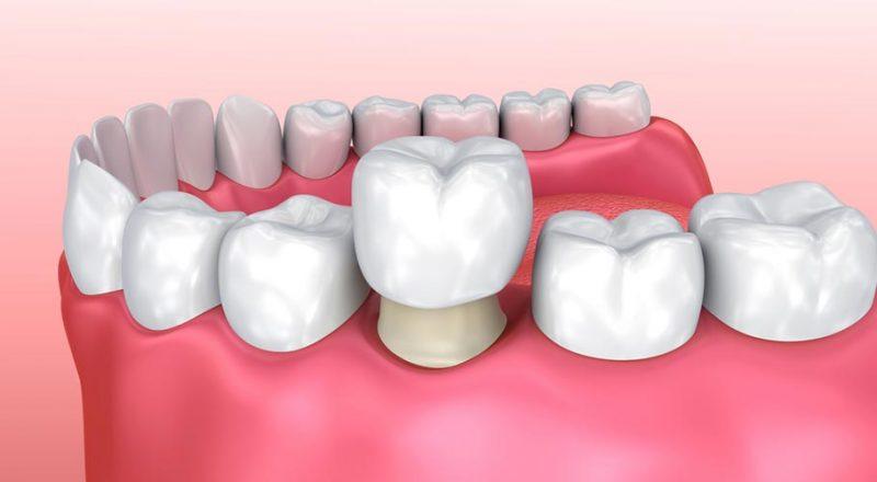 Điều trị sâu kẽ răng bằng biện pháp bọc răng sứ