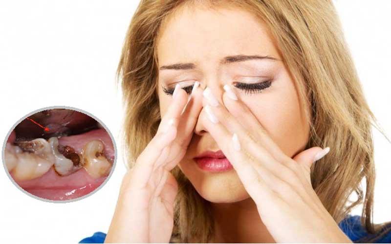 Không nên chủ quan tình trạng sâu răng viêm xoang