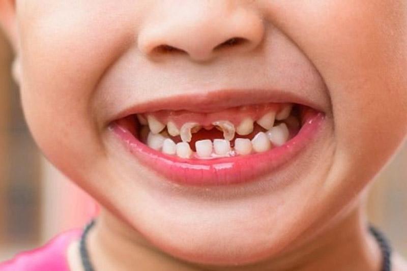 Sún răng cửa là hiên tượng thường gặp ở trẻ nhỏ giai đoạn thay răng
