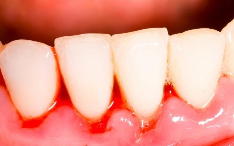 Đây là một trong những biểu hiện về những bệnh lý răng miệng và chăm sóc răng không đúng cách