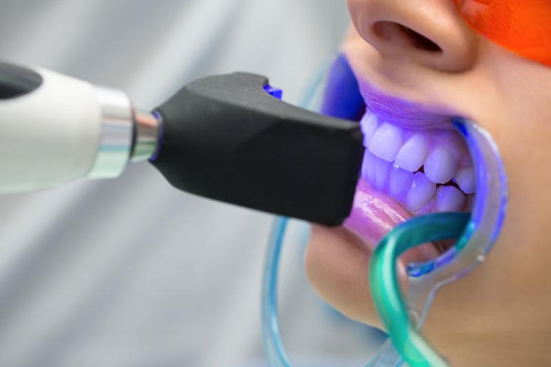 Tẩy trắng răng bị ê buốt có thể do cách ly môi, nướu không đảm bảo