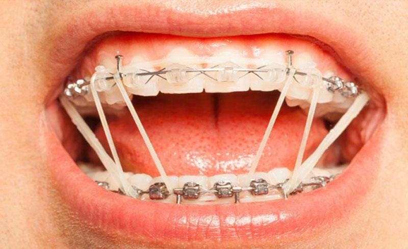 Dây thun niềng răng được sử dụng để tác động lực kéo đưa răng về vị trí mong muốn.