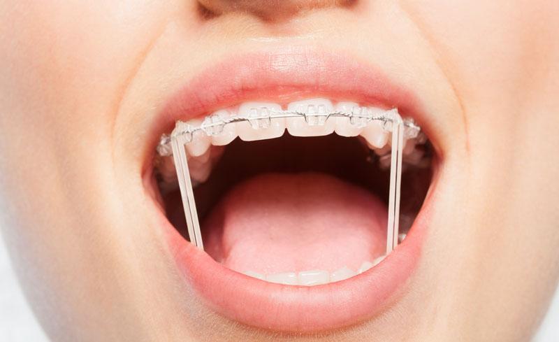 Thun liên hàm là một trong các loại thun niềng răng được sử dụng phổ biến hiện nay.