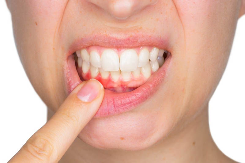 Người bị viêm nướu có thể bị ảnh hưởng nghiêm trọng về sức khỏe răng miệng
