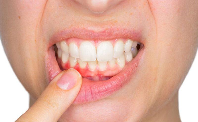 Người bị sưng lợi nổi hạch cũng do viêm nướu răng gây ra