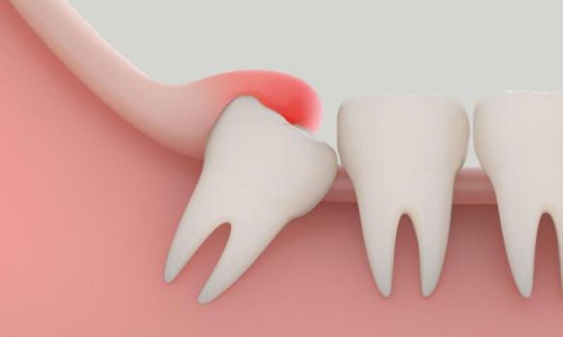 Viêm lợi mưng mủ là một trong những biểu hiện của người bệnh đang trong quá trình mọc răng khôn