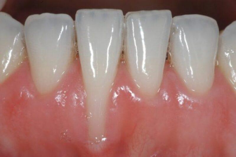 Khi người bệnh bị viêm lợi tụt chân răng ở mức độ nhẹ thường ít quan tâm