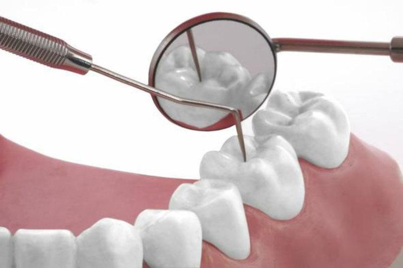 Một trong những cách điều trị viêm lợi tụt lợi là phủ mặt răng Composite