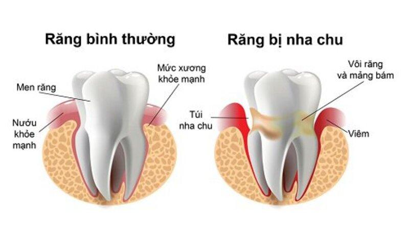 Đây bệnh lý viêm nhiễm vùng nướu làm tổn thương nghiêm trọng đến mô mềm và phá hủy xương hàm