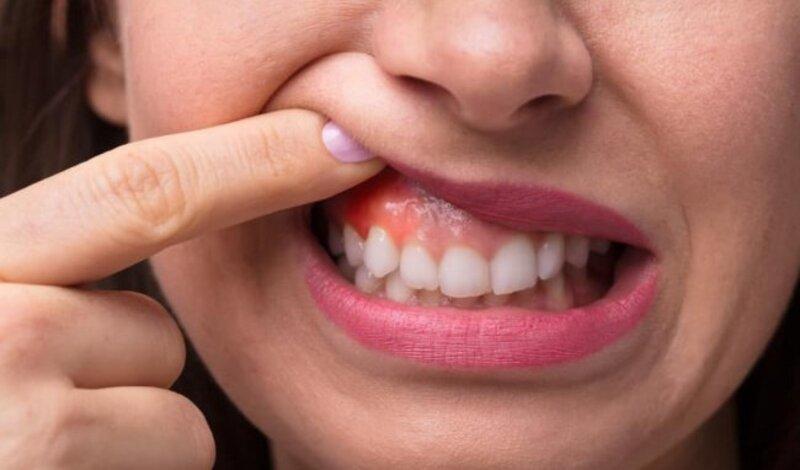 Bất kỳ ai bị viêm nha chu thường gặp một trong những dấu hiệu đầu tiên là viêm nướu răng