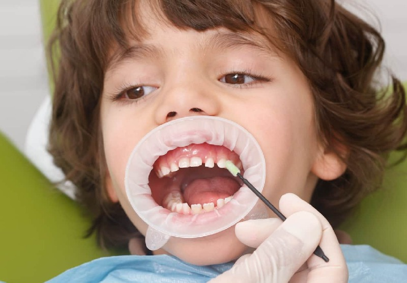 Khi sức khoẻ của bé không tốt, sức đề kháng yếu hoặc suy dinh dưỡng cũng sẽ làm tăng khả năng bị sâu răng