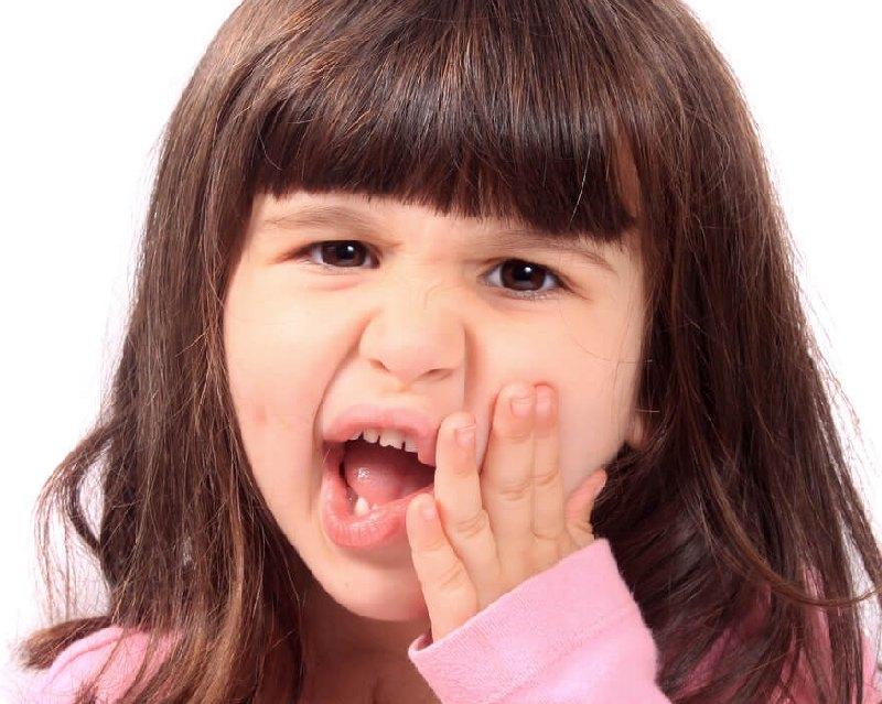 Bé 2 tuổi bị sâu răng do uống nhiều kháng sinh