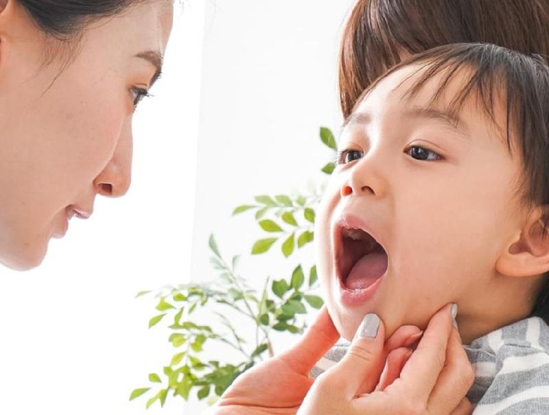 Bé 2 tuổi bị sâu răng nên được đi thăm khám tại các cơ sở nha khoa uy tín