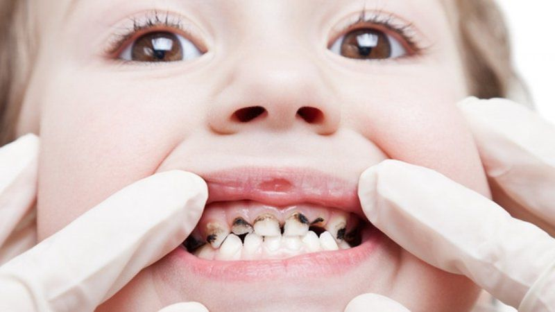 Trong trường hợp sâu răng nặng trẻ có thể bị viêm tủy