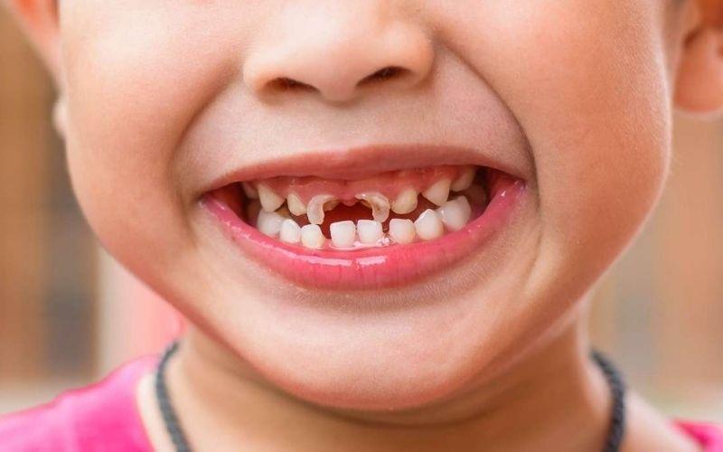 Trẻ 4 tuổi bị sâu răng là hiện tượng rất phổ biến