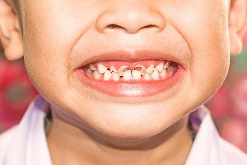 Nguyên nhân dẫn đến tình trạng trẻ bị sâu răng sữa
