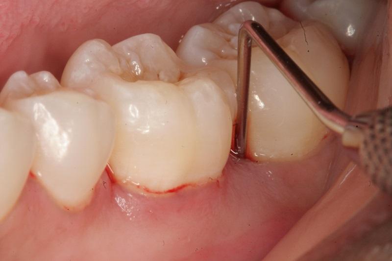 Hướng dẫn điều trị sưng nướu răng có mủ