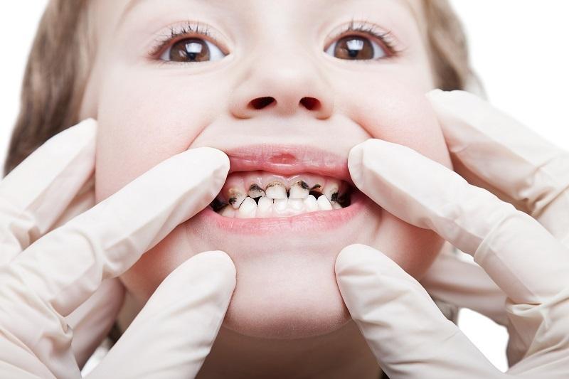 Dấu hiệu cảnh báo trẻ em 5 tuổi bị sâu răng