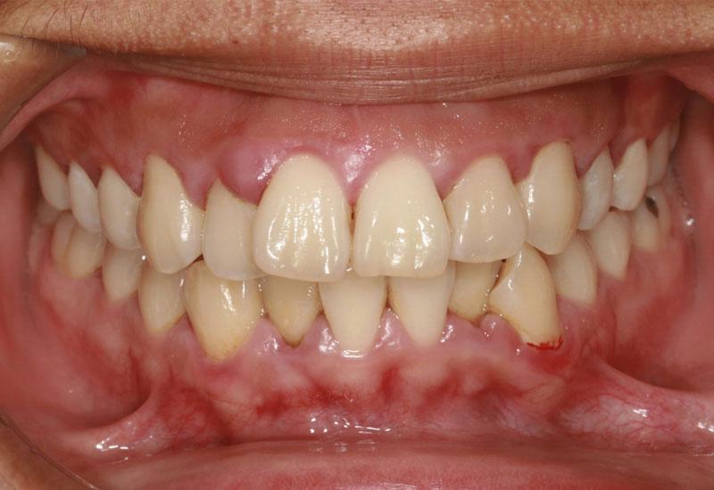 Viêm nướu răng là tình trạng sưng tấy, viêm nhiễm ở khu vực nướu răng gây đau nhức, khó chịu, có thể gặp ở mọi độ tuổi