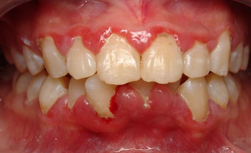 Sưng nướu răng có mủ chỉ tình trạng nhiễm trùng ở các mô gây hình thành ổ mủ
