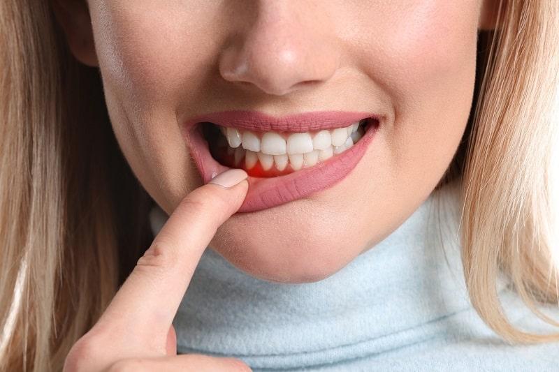 Sưng nướu răng và nổi hạch do viêm nha chu