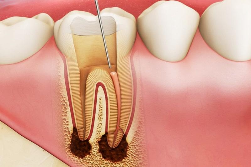 Sưng nướu răng và nổi hạch do viêm tủy