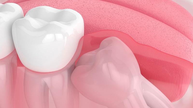 Viêm lợi trùm là tình trạng khiến răng mọc kẹt bên trong lợi