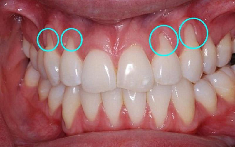 Viêm nướu răng sứ là bệnh lý răng miệng thường gặp