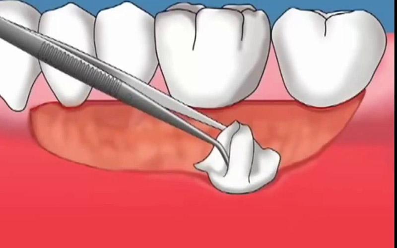 Cắt ghép lợi là một trong những thủ thuật nha khoa trong điều trị viêm nướu răng sứ