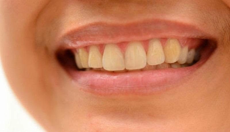 Việc áp dụng các bài thuốc chữa đau răng có thể làm vàng răng trong một thời gian